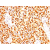 Formalin-Paraffin Rhabdomyosarcoma stained with MyoD1 Antibody Cat.-No AM33306PU (Clone 5.8A+MYD712)