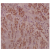 Immunohistochemistry (IHC) analysis of IRS-1 pSer794 antibody Cat.-No AP01831PU-N in paraffin-embedded human breast carcinoma at 1/100.