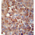 Immunohistochemistry analysis in human hepatocarcinoma using CHRDL1 / NRLN1 antibody Cat.-No. AP50906PU-N (N-term), followed by peroxidase conjugation of the secondary antibody and DAB staining. This data demonstrates the use of the CHRDL1 antibody  for IHC. Clinical relevance has not been evaluated.