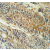 Immunohistochemistry analysis in colon carcinoma (Formalin-fixed, Paraffin-embedded) using PYCR1 antibody Cat.-No. AP53528PU-N (C-term), followed by peroxidase conjugation of the secondary antibody and DAB staining. This data demonstrates the use of the PYCR1 Antibody (C-term) for immunohistochemistry. Clinical relevance has not been evaluated.