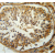 Immunohistochemistry analysis in human testis carcinoma(Formalin-fixed, Paraffin-embedded)using SERAC1antibody Cat.-No.AP54038PU-N(C-term), followed by peroxidase conjugation of the secondary antibody and DAB staining. This data demonstrates the use of the SERAC1 antibody for IHC; Clinical relevance has not been evaluated.