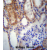 SUSD2 Antibody (C-term) (AP54112PU-N) immunohistochemistry analysis in formalin fixed and paraffin embedded human kidney tissue followed by peroxidase conjugation of the secondary antibody and DAB staining.This data demonstrates the use of SUSD2 Antibody (C-term) for immunohistochemistry. Clinical relevance has not been evaluated.