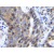 Formalin-Fixed, Paraffin-Embedded Sections of Human colorectal adenocarcinoma stained withCXCL12 / SDF1 Antibody Cat.-NoPP1067P