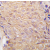 Formalin-fixed and paraffin-embedded human breast carcinoma tissue reacted with ALDH6A1 antibody (N-term) (AP11461PU-N), which was peroxidase-conjugated to the secondary antibody, followed by DAB staining. This data demonstrates the use of this antibody for immunohistochemistry; clinical relevance has not been evaluated.