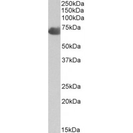 TA326742