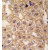 Formalin-fixed and paraffin-embedded human hepatocarcinoma tissue reacted with BAR2 Antibody  (AP13972PU-N), which was peroxidase-conjugated to the secondary antibody, followed by DAB staining. This data demonstrates the use of this antibody for immunohistochemistry; clinical relevance has not been evaluated.