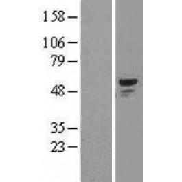 NBL1-16218