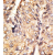 Formalin-fixed and paraffin-embedded human hepatocarcinoma reacted with the primary antibody, which was peroxidase-conjugated to the secondary antibody, followed by DAB staining. This data demonstrates the use of this antibody for immunohistochemistry; clinical relevance has not been evaluated.