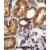 WT1 Antibody (Center E361) (AP54572PU-N)immunohistochemistry analysis in formalin fixed and paraffin embedded human kidney tissue followed by peroxidase conjugation of the secondary antibody and DAB staining.This data demonstrates the use of WT1 Antibody (Center E361) for immunohistochemistry. Clinical relevance has not been evaluated.