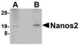 Fig. 3: Western blot analysis of Nanos2 in human testis lyate with Cat.-No. AP30581PU-N at (A) 2 and (B) 4 µg/ml