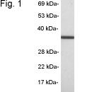 SP5248P - Transducin beta chain 1 / GNB1