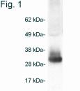SP5133P - Adiponectin