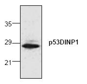 AP00101PU-N - TP53INP1