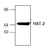 AP00337PU-N - MYST2