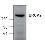AP00321PU-N - BRCA2 / FANCD1