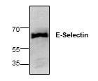 AP00285PU-N - CD62E / E-Selectin