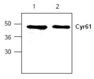 AP00299PU-N - CYR61