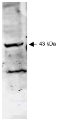 R1554P - Sialidase-2
