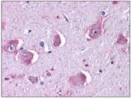 SP4353P - Histamine H1 receptor