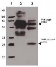 R1565 - Osteopontin / SPP1