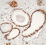 AM00244PU-N - Androgen receptor