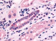 SP4043P - Serotonin receptor 1F (HTR1F)