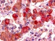SP4534P - Vasopressin V1b receptor (V1bR)