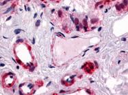 SP4082P - CGRP type 1 receptor / CRLR