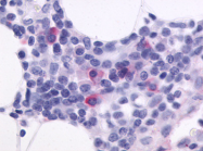SP4107P - CD185 / CXCR5