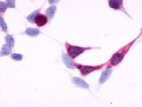 SP4124P - Endothelin B receptor