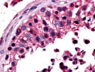 SP4131P - Estrogen-related receptor beta