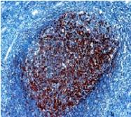DM028 - CD21