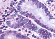 SP4343P - GLP2 receptor