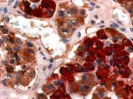 SP4350P - GHRH receptor