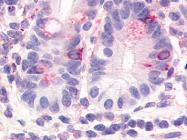 SP4352P - HNF4 gamma / NR2A2