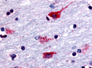 SP4408P - Muscarinic acetylcholine receptor M2