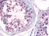 SP4434P - Olfactory receptor 10R2