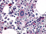 SP4512P - Thrombin receptor / F2R