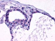 SP4514P - Thyrotropin receptor / TSHR