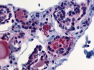SP4515P - Thyrotropin receptor / TSHR