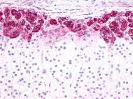 SP4565P - Endothelin B receptor