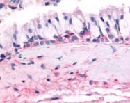SP4606P - Olfactory receptor 10J5