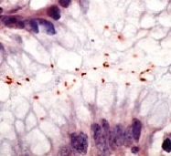 DP016 - Helicobacter pylori