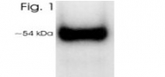 SM5036P - Vitamin D3 receptor / NR1I1