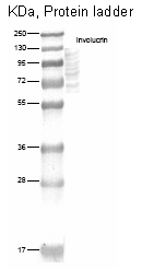 DM270 - Involucrin / IVL