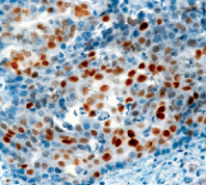 DM280 - CDKN1A / p21WAF1