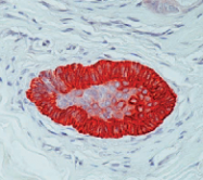 DM305 - Cytokeratin 15