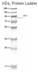 DM311 - HIF1A / HIF1 alpha