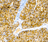 DM428 - Melanoma