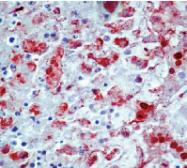 DP018 - Herpes simplex Virus 1 / HSV1